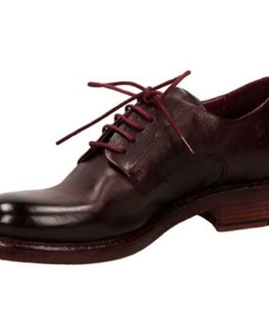 Červené topánky Hundred 100