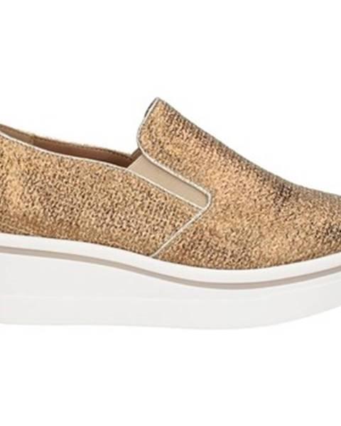 Zlaté topánky Gold gold